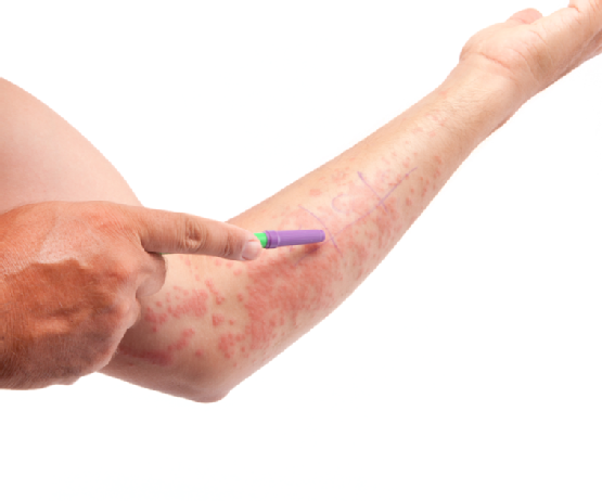 11 Eczema Triggers To Avoid