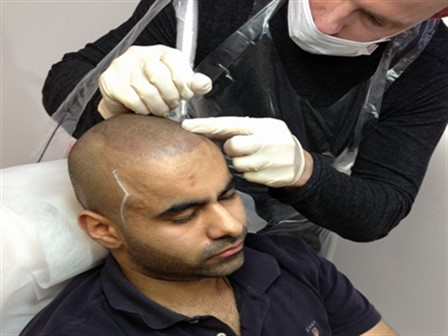The Best Hair Loss Solution- Scalp Pigmentation