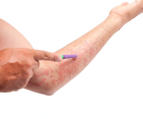 11 Eczema Triggers To Avoid