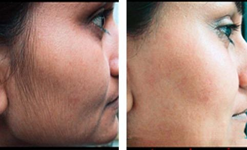 Permanent HairRemoval with HairFree No.1