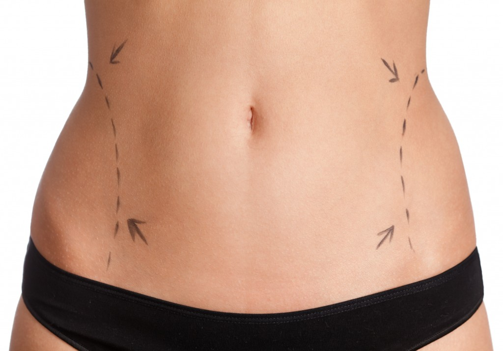 The 5 Best Kept Secrets About Liposuction