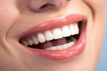4 Undeniable Benefits Of Cosmetic Dentistry